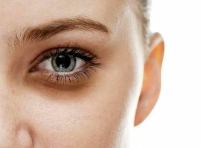 Cerrahi olmayan bir estetik müdahale; Göz altı ışık dolgusu nedir?